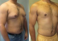 What is the Age Eligibility for the Gynecomastia Surgery?