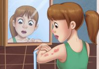 GET A BASIC UNDERSTANDING OF WHAT IS PSORIASIS