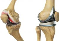 How to search for best hospital for joint replacement surgery in Pakistan?
